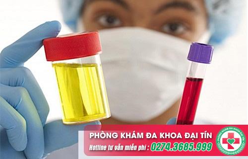 Đi tiểu ra máu ở nữ giới là dấu hiệu cảnh báo bệnh gì?