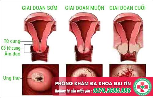Làm sao để điều trị viêm lộ tuyến cổ tử cung